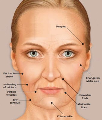 Facts About SCULPTRA